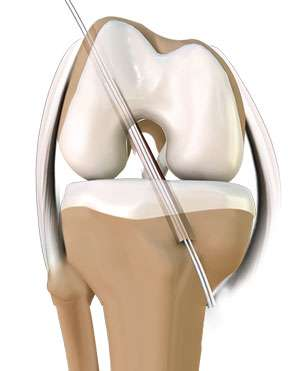 Anterior Cruciate Ligament (ACL) Reconstruction